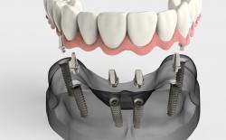 Full lower jaw dental implants