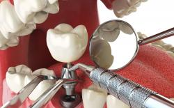 Dental implant procedure with titanium implant