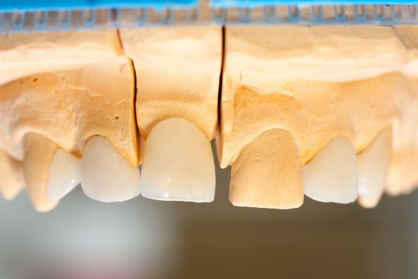 E-max crowns and onlays on gypsum