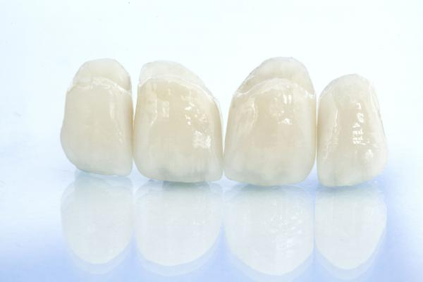 Multiple zirconia crowns